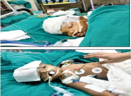 印度头部相赤阳老魔连双胞胎手术分离 医生:存活率难料|双胞胎|印度|手术